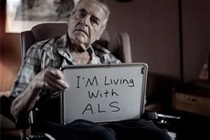 عوامل موثر بر بیماری ALS/ بیماریهای شایع مغز و اعصاب
