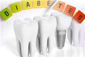 بیماران دیابتی می توانند ایمپلنت کنند؟/ایمپلنت درمان لاکچری نیست