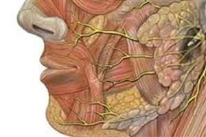 تسریع در بازسازی عصب چهره
