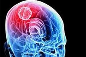 دستورالعملی برای درمان تومور مغزی کشنده