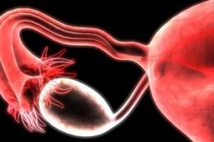 چگونه از عود مجدد سرطان تخمدان جلوگیری کنیم؟