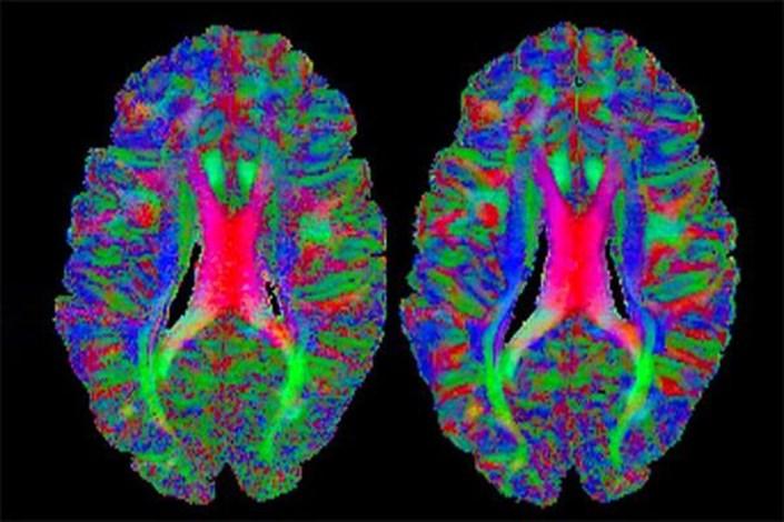 نقشه برداری مغز