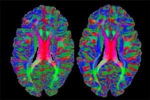 ارائه 19 خدمت جدید به پژوهشگران نقشهبرداری مغز