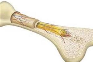 کاربردی کردن سلول ها در ترمیم استخوان