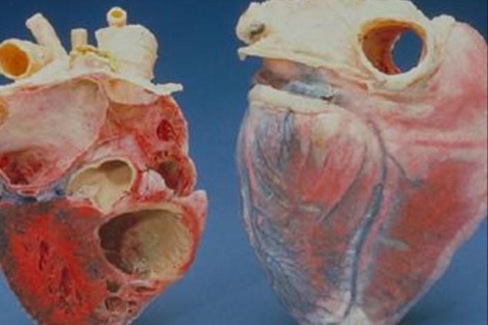 دریچه قلب