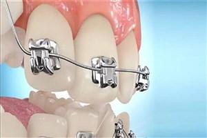 اصلاح عیوب دندانبه کمک محصول ایرانی