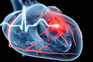 کاهش عوارض ناشی از بیماریهای قلبی با سلولهای بنیادی