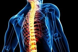 افزایش توانمندی حرکتی بیماران آسیب نخاعی با فناوری بومی
