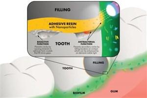 چسب پلیمری نانویی برای کمک به دندانپزشکان