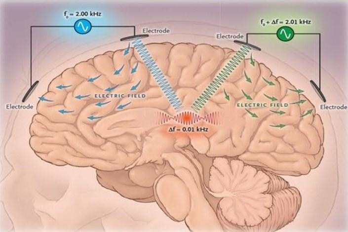 دستگاه تحریک عمقی غیر تهاجمی مغز
