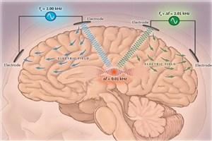 دستگاه تحریک عمقی غیر تهاجمی مغز ساخته شد