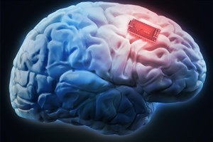 Iranian Researchers Produce Li-ion Battery for Brain Implant