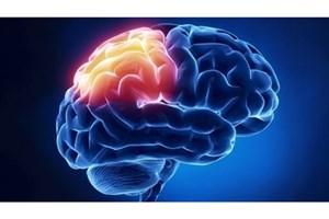 تشخیص سکته مغزی در کوتاه ترین زمان ممکن