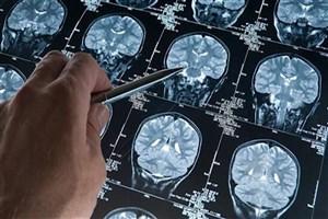 گامی به جلو در توانبخشی افراد مبتلا به ضایعه مغزی