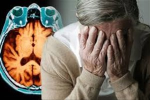 پروسه آلزایمر را کند کنید