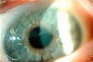 استفاده از بافت چشمی اهدایی و امیدواری در جراحی سلول های بنیادی