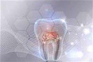 لثه دندان بدون نیاز به جراحی ترمیم میشود