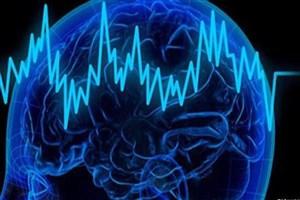 سیگنالهای مغزی با الکترودهای ایران ساخت ثبت میشود