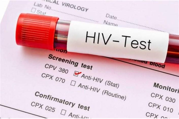 کاهش یکسومی مرگ و میر مبتلایان به ایدز