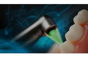 کاربردهای لیزر در درمانهای دندانپزشکی