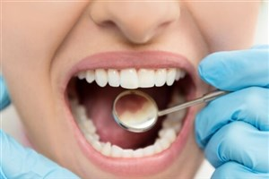 چینیها مینای دندان را احیا کردند/ پرکردن دندان منسوخ شد