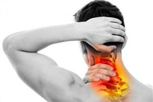 کشف ارتباط بین سردرد مزمن و کمردرد