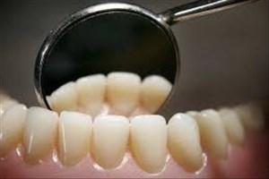 مینای دندان چگونه عمر می کند؟