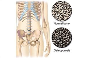 ارتباط مصرف استاتین با پوکی استخوان