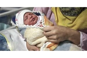 جراحی شیرخوار سه ماهه/ نوزادبه  «سندرم ژنتیکی Apert» مبتلا بود