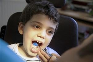 بهترین زمان برای اولین معاینه ارتودنسی چند سالگی است؟