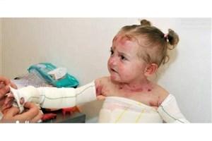 مقصر عدم تامین به موقع پانسمان بیماران پروانهای کیست؟/ شایعه مرگ ۱۵ کودک مبتلا به بیماری EB