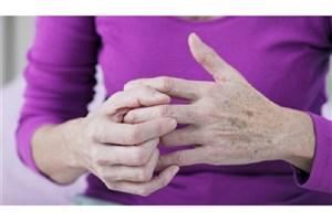 مبتلایان به روماتیسم مفصلی چه بخورند؟