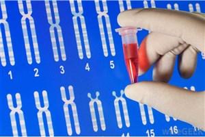 هزینه آزمایش ژنتیک برای افراد تحت پوشش رایگان است