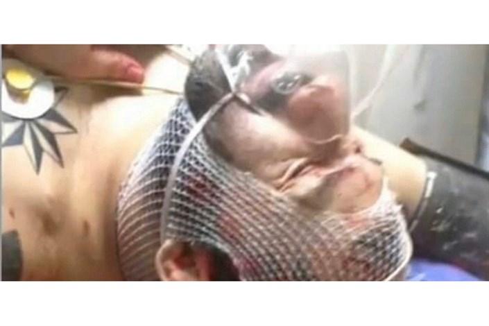درگیری خونین اراذل و اوباش و مصدومیت «هانی کُرده»