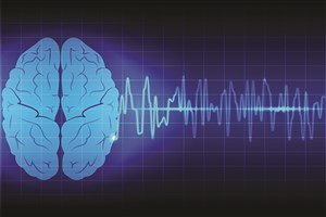 Najafabad IAU Researcher Detects and Predicts Real Time of Epileptic Seizure