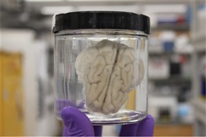 Scientists Resurrect the Brain Four Hours After Death