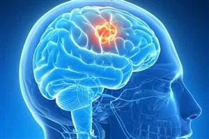 کشف داروی جدید درمان تومور گلیوبلاستوما