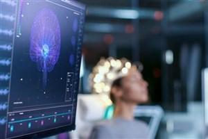ابداع یک مدل رایانهای برای بررسی آسیبهای مغز پس از سکته