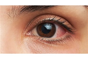 شیوع عفونتهای ویروسی «چشم»/سرماخوردگی هایی که به چشم می زند