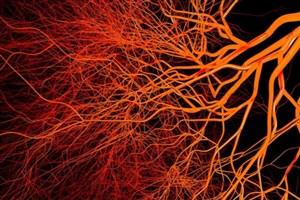 تاثیر تزریق نانوذرات بر درمان آماس مغزی