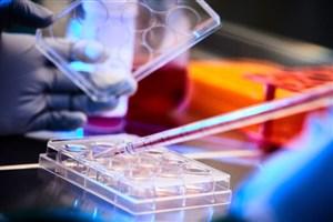 تولید آنزیم صنعتی گامی موثر در راستا کاهش وابستگی به خارج/ باید به دنبال جذب سرمایهگذار بود