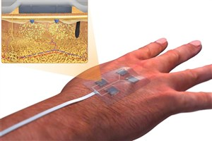Iranian Scientist Create 'Smart' Bandages to Heal Chronic Wounds