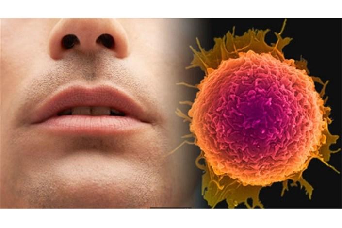 شیوع  گسترده سرطانهای دهان و ناحیه فک