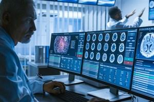 نانوذراتی برای کاهش تورم در آسیبهای مغزی