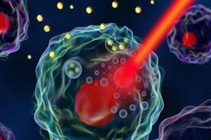 استفاده از لیزر و نانوذرات برای تشخیص زودهنگام سرطان