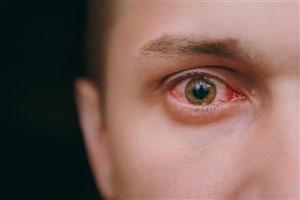قرمزی چشم یکی از علائم مبتلایان به ویروس کرونا است