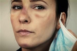 چگونه از آسیب ماسک به صورت جلوگیری کنیم؟