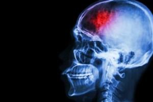 ارتباط سکته مغزی و ویروس کرونا