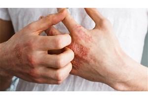 علل بروز عارضههای پوستی در برخی مبتلایان کرونا