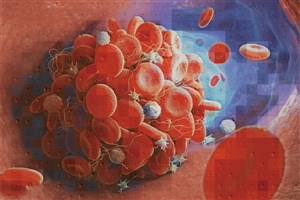 Physicians Create New Tool Helps Distinguish the Cause of Blood Clots